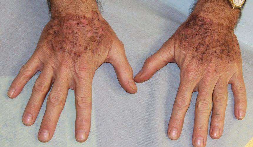 lentigos-taches-brune-traitement