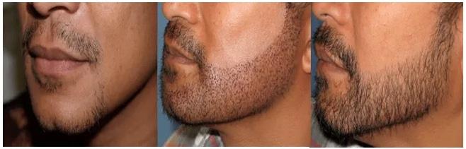Resultat greffe barbe