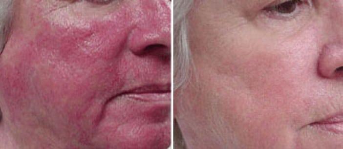 resultat-laser-vasculaire-rougeur