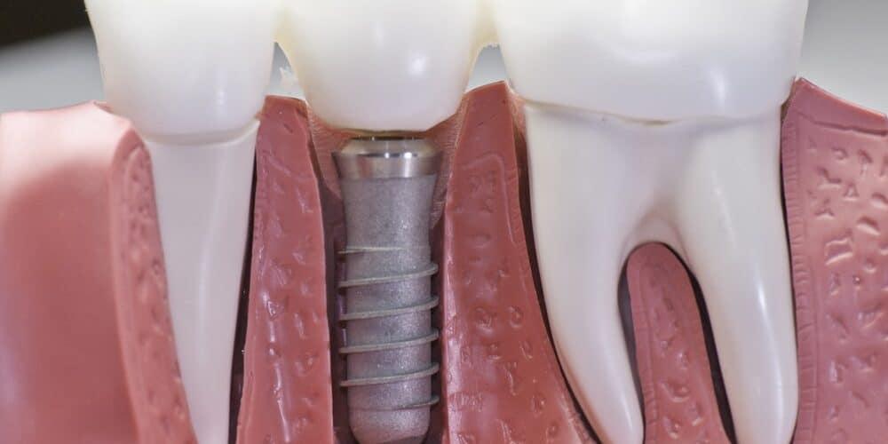 implants dentaire Hongrie