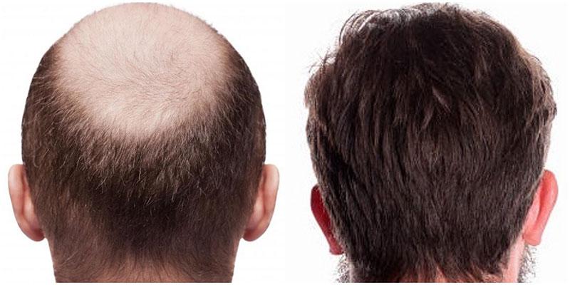 Avant Après greffe cheveux France