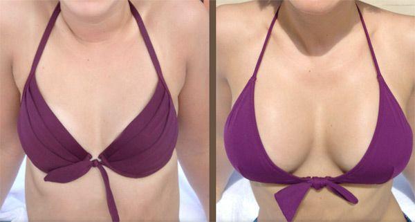 resultat-augmentation-seins-par-implants-mammaires