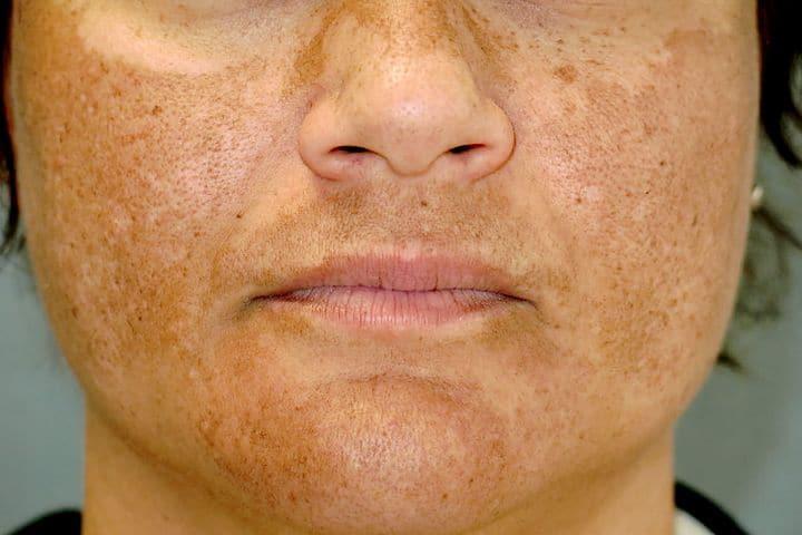 masque-de-grossesse-Melasma