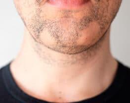 traitements-alopecie-barbae