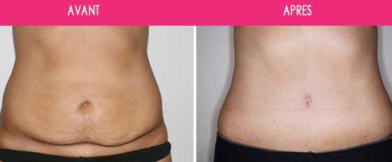 Abdominoplastie, chirurgie de la paroi abdominale Tunisie