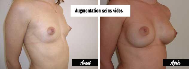 augmentation mammaire petits seins implants anatomiques