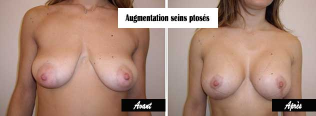 augmentation mammaire seins tombants