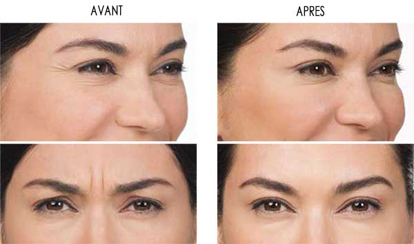 Résultat injection botox tunisie