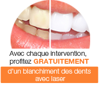 promotion blanchiment dentaire gratuit