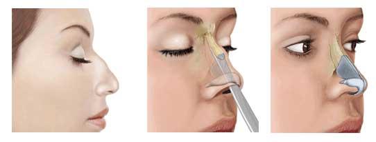 chirurgie rhinoplastie esthetique Tunisie