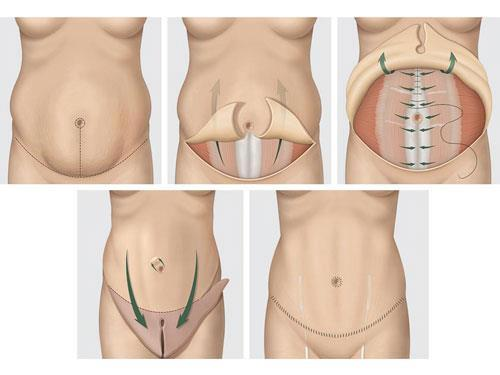 etapes abdominoplastie Tunisie
