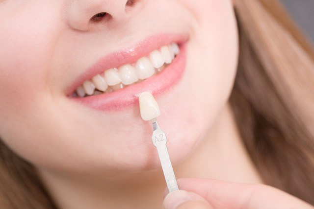 pose facettes dentaires Tunisie
