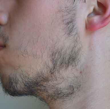 indication greffe barbe