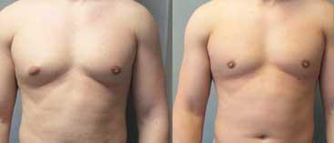 chirurgie seins homme Tunisie