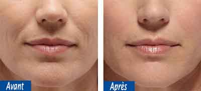Photo avant/après injection acide hyaluronique tunisie