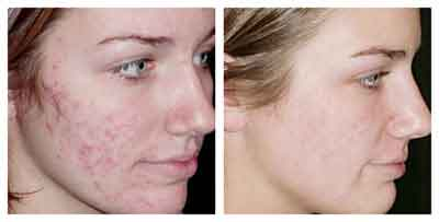 Traitement laser cicatrices acne tunisie