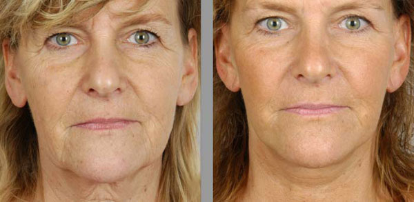prix lifting cervico-facial Tunisie
