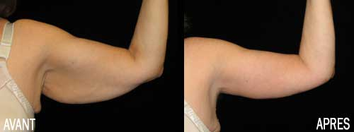liposuccion bras tunisie
