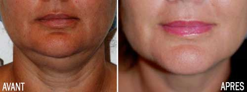liposuccion cou visage
