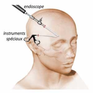 min lifting endoscopique visage