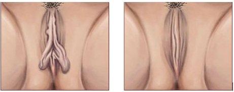réduction petites lèvres