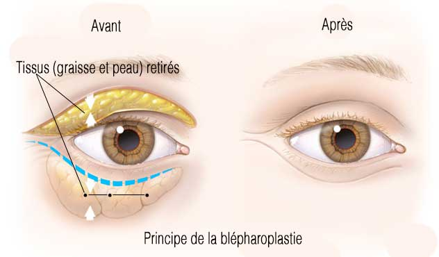 principe blepharoplastie