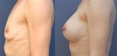 resultat augmentation mammaire protehse