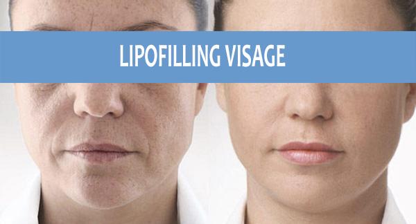 resultat lipofilling visage
