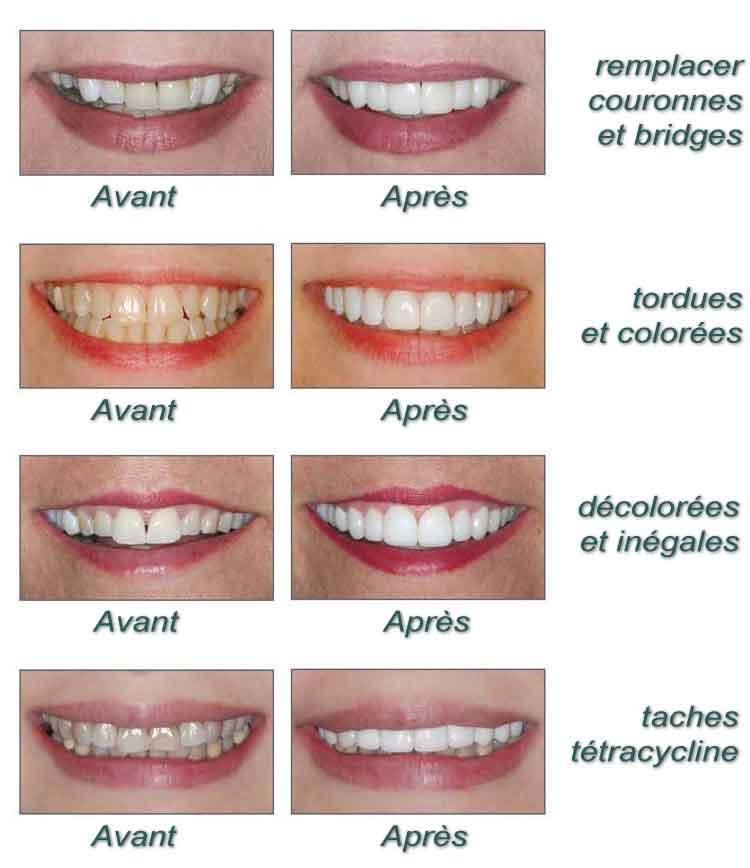 Resultat pose facette dentaire cas par cas