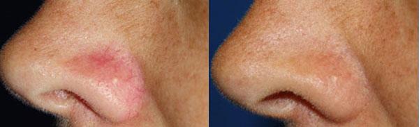 laser couperose nez