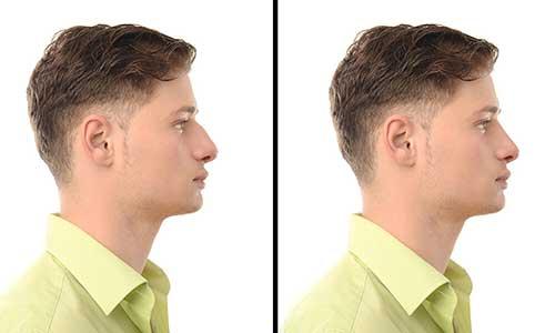 résultat rhinoplastie esthetique