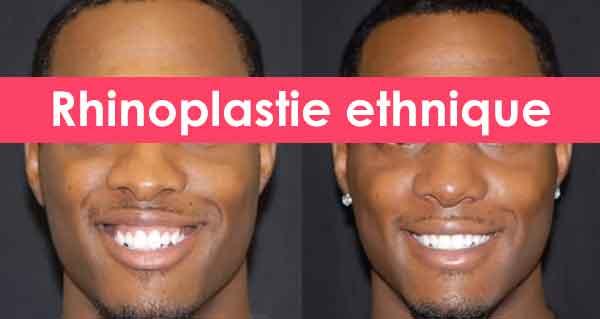 rhinoplastie ethnique tunisie