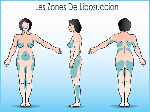zones liposuccion corps